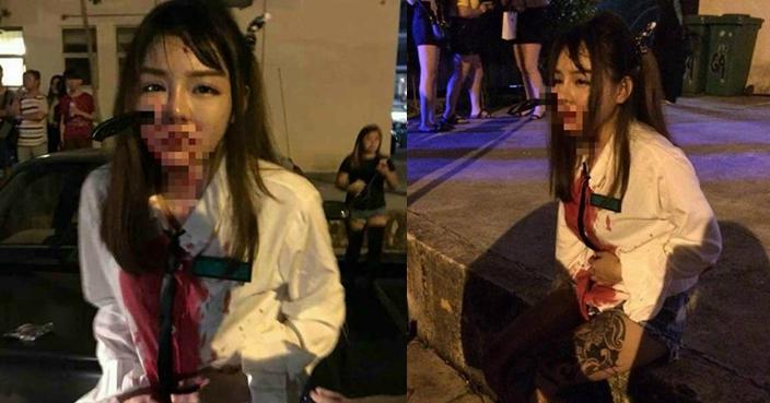 Cô gái bị tấn công dã man nhưng không hề mất bình tĩnh. Ảnh: Bastillepost.com