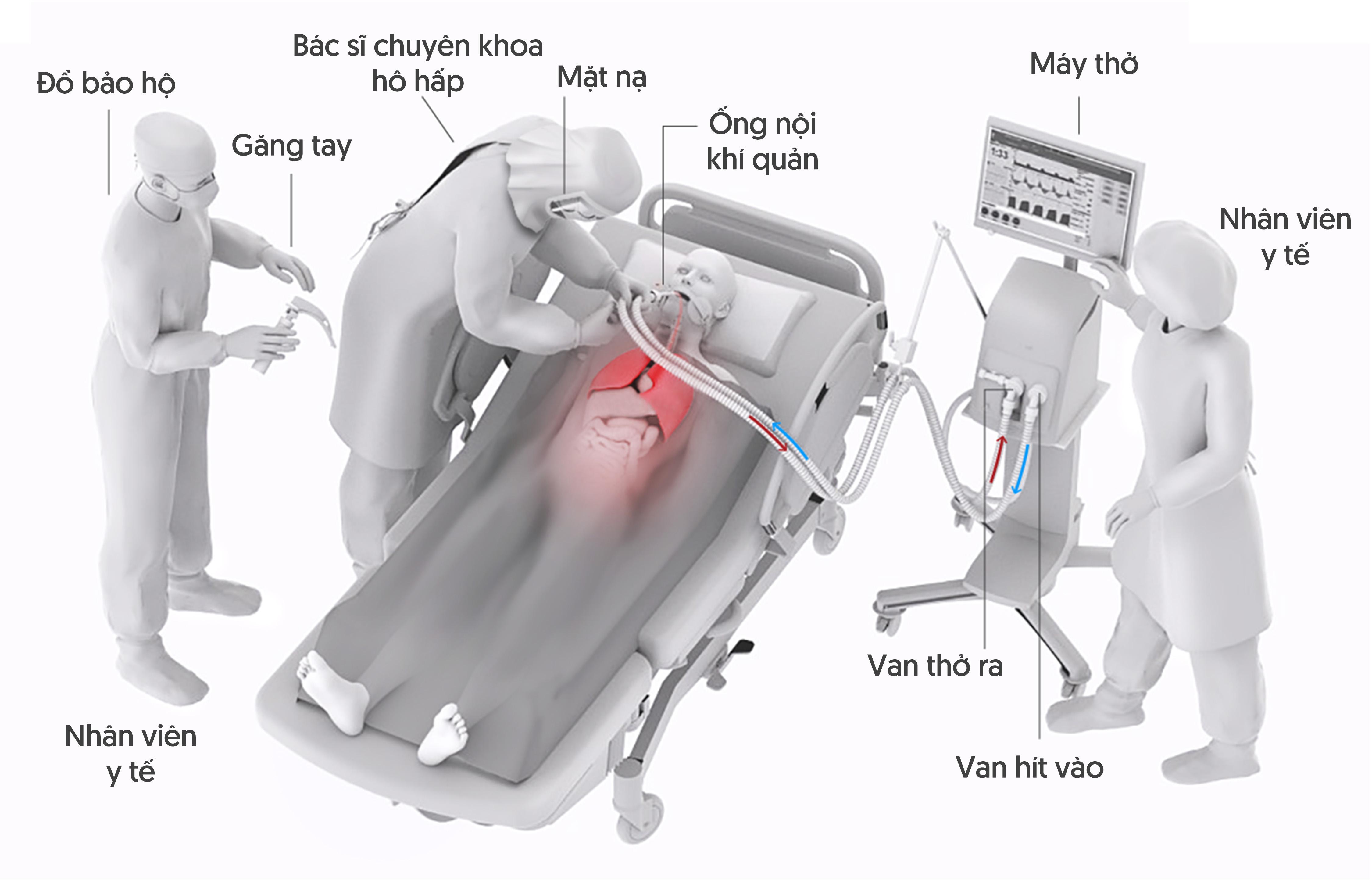 Máy thở hoạt động như thế nào với vai trò sống còn trong cuộc chiến chống COVID-19?