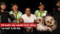Chuyện lạ: Rùng mình vụ buôn lậu 50 bộ xương người trong vali