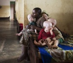 Cuộc sống thấp thỏm của những 'thần bất tử' ở châu Phi