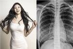 Mẫu Hàn tung phim X-quang chứng minh ngực thật