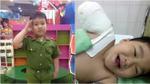 Cảm phục trước nghị lực của cậu bé 6 tuổi bị đứt lìa cánh tay
