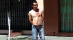 Thanh niên ngáo đá, tự rạch mình ở Bình Định