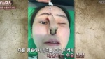 Phẫu thuật thẩm mỹ hỏng, cô gái Hàn Quốc nhận hậu quả đáng sợ