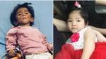 Clip: Sau gần 1 năm, em bé Lào Cai suy dinh dưỡng đã biết cười tươi khi nghe tiếng gọi của mẹ nuôi 9X