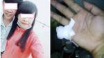 Bị bạn gái phản bội, chàng trai chặt ngón tay để níu kéo tình yêu