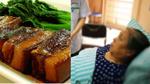 Trung Quốc: Phát hiện 806 viên sỏi mật trong bụng người phụ nữ ăn thịt ba chỉ và mỡ heo mỗi ngày