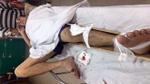 Tài xế 'xe dù' đâm nát xe máy khiến một người gãy chân rồi bỏ trốn