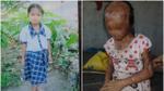 Cuộc sống mù lòa của cô bé 12 tuổi sau 5 năm hứng trọn can a xít trong trận đánh ghen kinh hoàng