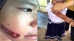Vụ bé gái nghi bị cha dí thanh sắt nóng vào người: Cách ly khỏi cha ruột và mẹ kế