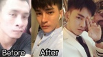 Chi hàng tỷ đồng và gần 30 cuộc phẫu thuật, chàng trai từng 'xấu như Lệ Rơi' đã có nhan sắc như idol Kpop