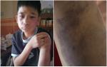 Bé trai 14 tuổi bầm tím khắp cơ thể vì bị bố đẻ cùng mẹ kế đánh đập