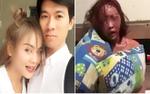 Nam thanh niên livestream đánh đập bạn gái dã man trên Facebook vì ghen tuông