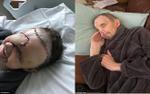 Người đàn ông hóa 'quái vật' vì bị căn bệnh ung thư mắt hành hạ