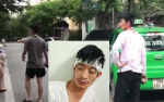 Tài xế taxi bị người đàn ông đi xe Mercedes đánh chảy máu phải chuyển lên bệnh viện Việt Đức