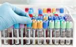 Bất cẩn, bác sĩ Trung Quốc gây lây nhiễm HIV cho 5 người