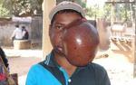 Khối u to bằng quả bóng che nửa khuôn mặt chàng trai 19 tuổi