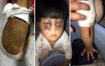 Bé 4 tuổi ở Trung Quốc bị cha đánh thâm tím mặt, ép giặt quần áo