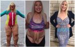 Chưa kịp vui mừng khi thành công giảm 150kg, cô gái lại phải chịu đựng làn da nhăn nheo chảy xệ đáng sợ