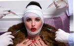 Những điều cần biết về phẫu thuật căng da mặt & biến chứng có thể xảy ra