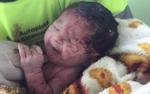 Văng khỏi bụng mẹ sau tai nạn giao thông thảm khốc, thai nhi sống sót kỳ diệu