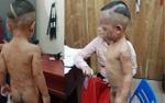 Bé trai 3 tuổi bị cha dượng đánh chi chít vết thương, không mở được mắt vì không chịu ngủ trưa
