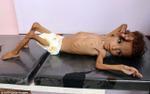Hình ảnh cậu bé 'da bọc xương' gây sốc trong cuộc chiến khiến 17 triệu người chết đói
