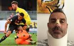 Khiến thủ môn đối phương gãy mũi, Ronaldo được nạn nhân 'tôn' làm huyền thoại