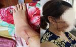 Người phụ nữ tố bị chồng cắt đứt 3 gân chân, rạch mặt do ghen tuông