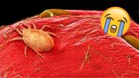 16 hình ảnh đồ ăn dưới kính hiển vi chắc chắn sẽ khiến bạn nổi da gà