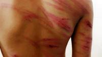 Bé trai 8 tuổi bị cha dượng đánh nhập viện, mẹ đẻ thờ ơ như không có chuyện gì