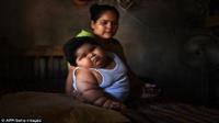 Em bé 10 tháng ở Mexico nặng 28kg, mẹ cứ ngỡ do sữa tốt nhưng không ngờ sự thật phía sau