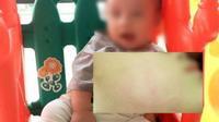 Đưa con đến phòng khám tư, cha bức xúc khi con mới 22 tháng tuổi bị bác sĩ tát vào mặt