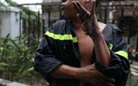 Hình ảnh chiến sĩ PCCC bị bỏng đến mức tróc cả da tay khiến cư dân mạng cảm phục