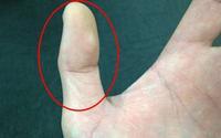Nhìn độ dài hai đốt ngón tay cái biết ngay tình duyên lận đận hay suôn sẻ