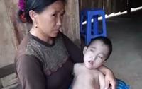 Cảnh khốn cùng của gia đình dân tộc H'Mông có 3 chị em bị bệnh hiểm nghèo bị đồn do hôn nhân cận huyết