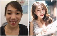 Nhờ phẫu thuật thẩm mỹ, 5 cô gái biến thành hot girl khiến dân mạng xôn xao