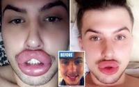 Chàng trai nghiện phẫu thuật thẩm mỹ, từng vỡ môi vì tiêm quá nhiều filler
