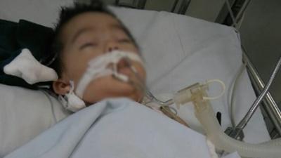 Bé gái 8 tháng tuổi bị nữ điều dưỡng tiêm nhầm kali thay vì đường uống đã qua đời