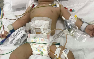 Xót lòng bé trai 11 tuổi bị chính mẹ ruột dùng dao đâm nhiều nhát vào bụng