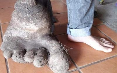 Sửng sốt trước củ khoai tây hình 6 ngón chân, nặng tới 8 kg