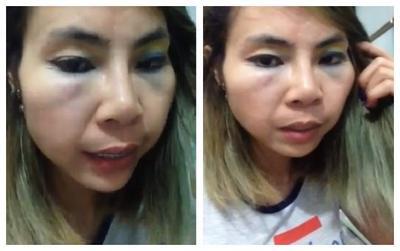 Sau khi tách khỏi con trai, 'hot girl' Bella lên mạng tố bị đánh bầm tím mặt mũi và sự thật đằng sau