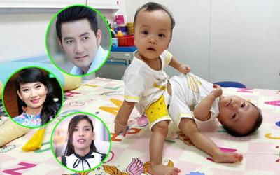 Mổ cặp song sinh dính liền phức tạp nhất Việt Nam: Sao Việt và cộng đồng mạng cùng nín thở cầu nguyện!