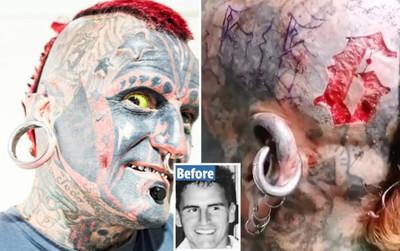 'Quái nhân' nghiện xăm chấp nhận da tróc thịt bong để khắc số 6 lên đầu