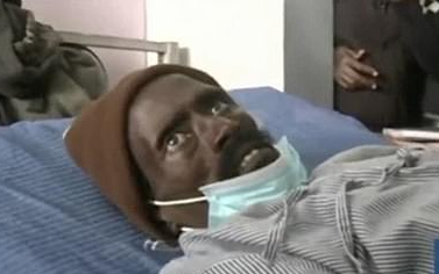 'Người chết' kêu la đau đớn khi bị rạch chân trong nhà xác