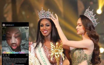 Hoa hậu chuyển giới kế nhiệm Hương Giang đại phẫu khuôn mặt, kết thúc 10 năm bị chê cười?