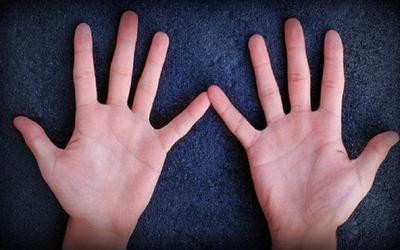 Bàn tay có điểm vàng này đích thị là con cháu Thần Tài: Số 3 cực kỳ hiếm, chỉ 1.5% người trên thế giới có