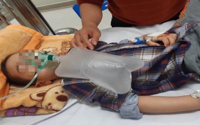 Thái Nguyên: Cháu bé 4 tuổi nguy kịch do uống nhầm methadone trong tủ lạnh