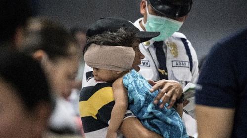 Gần 200 người Philippines bị thương vì pháo hoa trong dịp năm mới