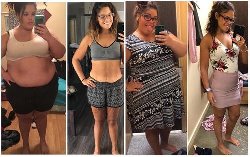 Cô gái trẻ gây shock khi tăng đến 145kg rồi giảm 80kg trong thời gian ngắn